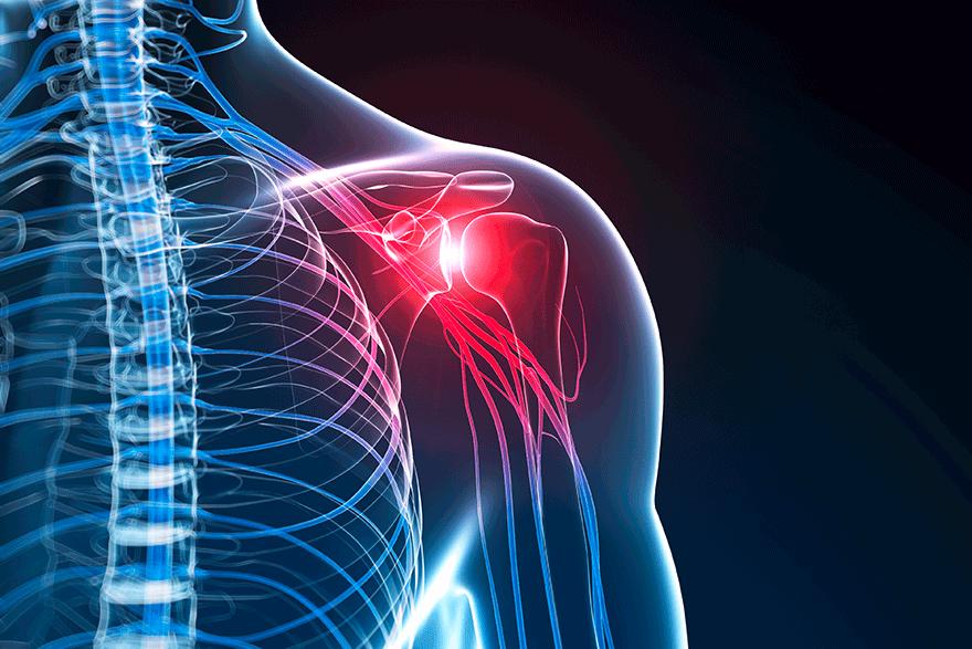 AC-Gelenksarthrose – Orthopädie am See