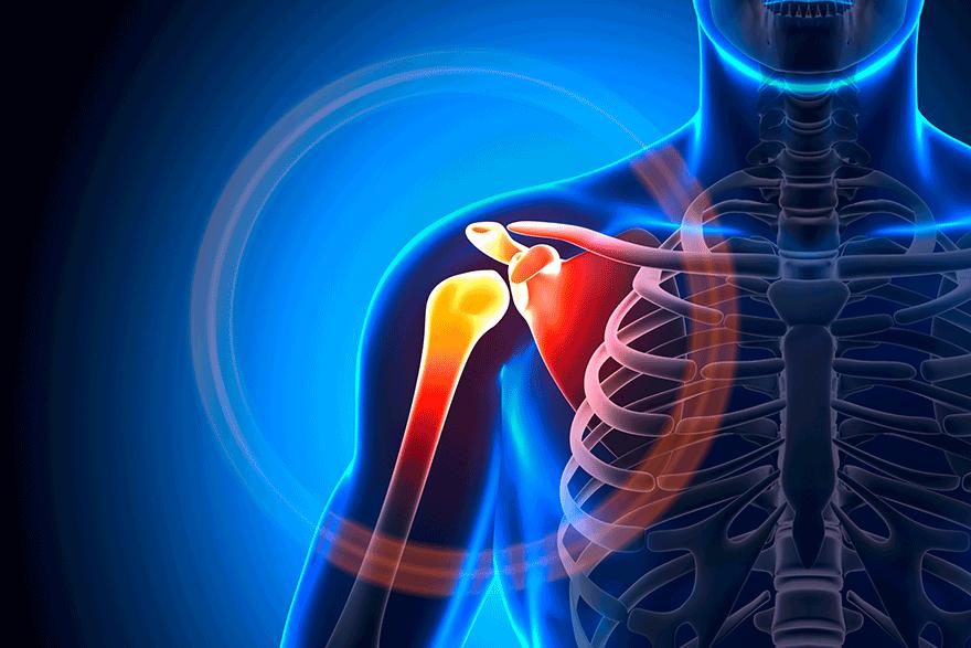 Akute Schulterinstabilität – Orthopädie am See